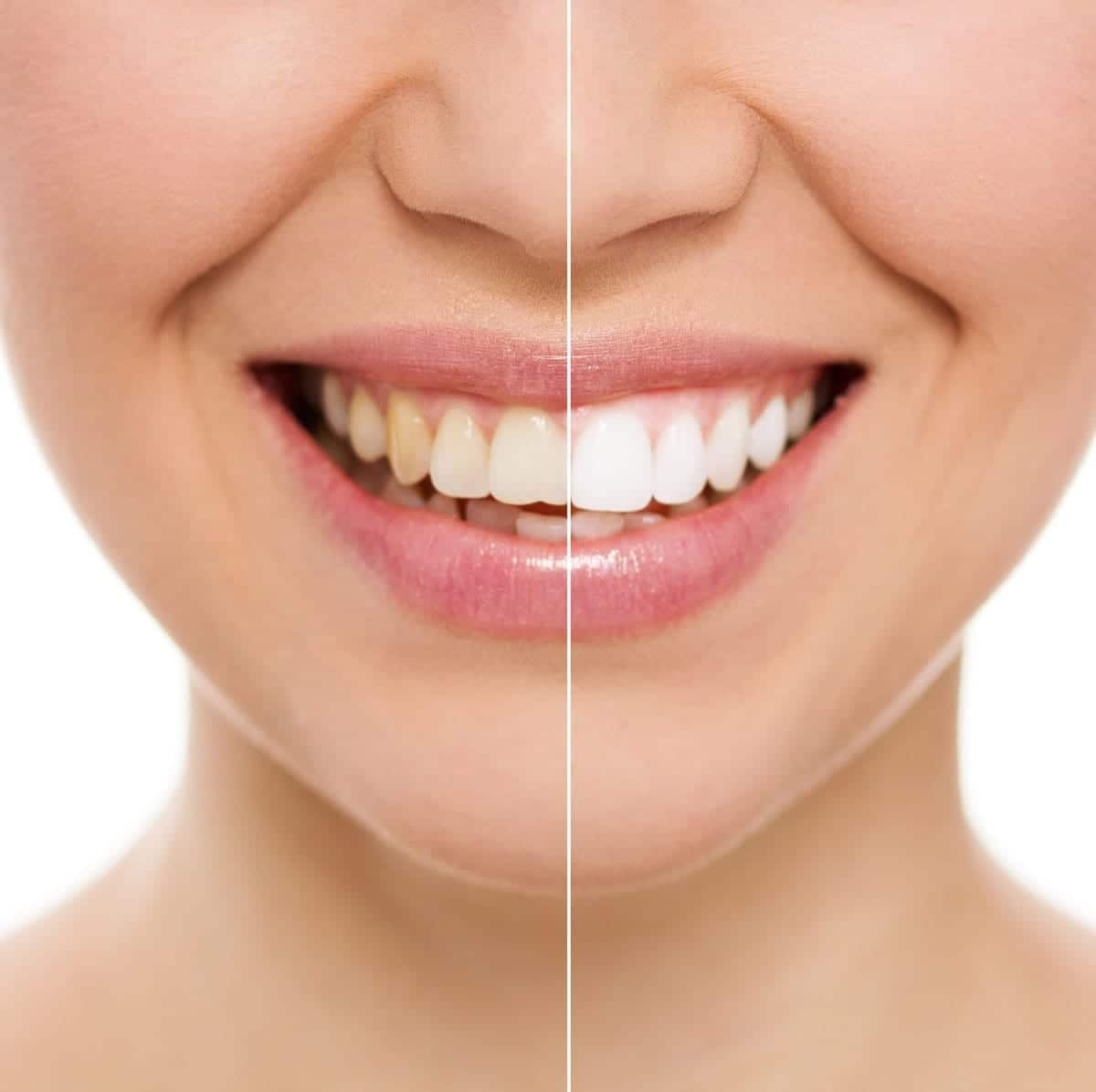3 Ways to Whiten Your Teeth