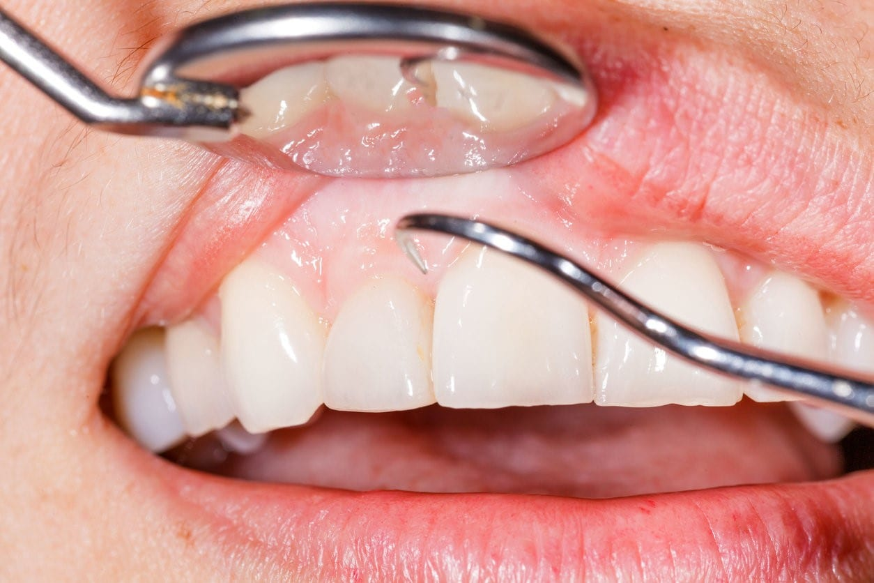 What Causes Gums to Recede – and How Do You Deal with It