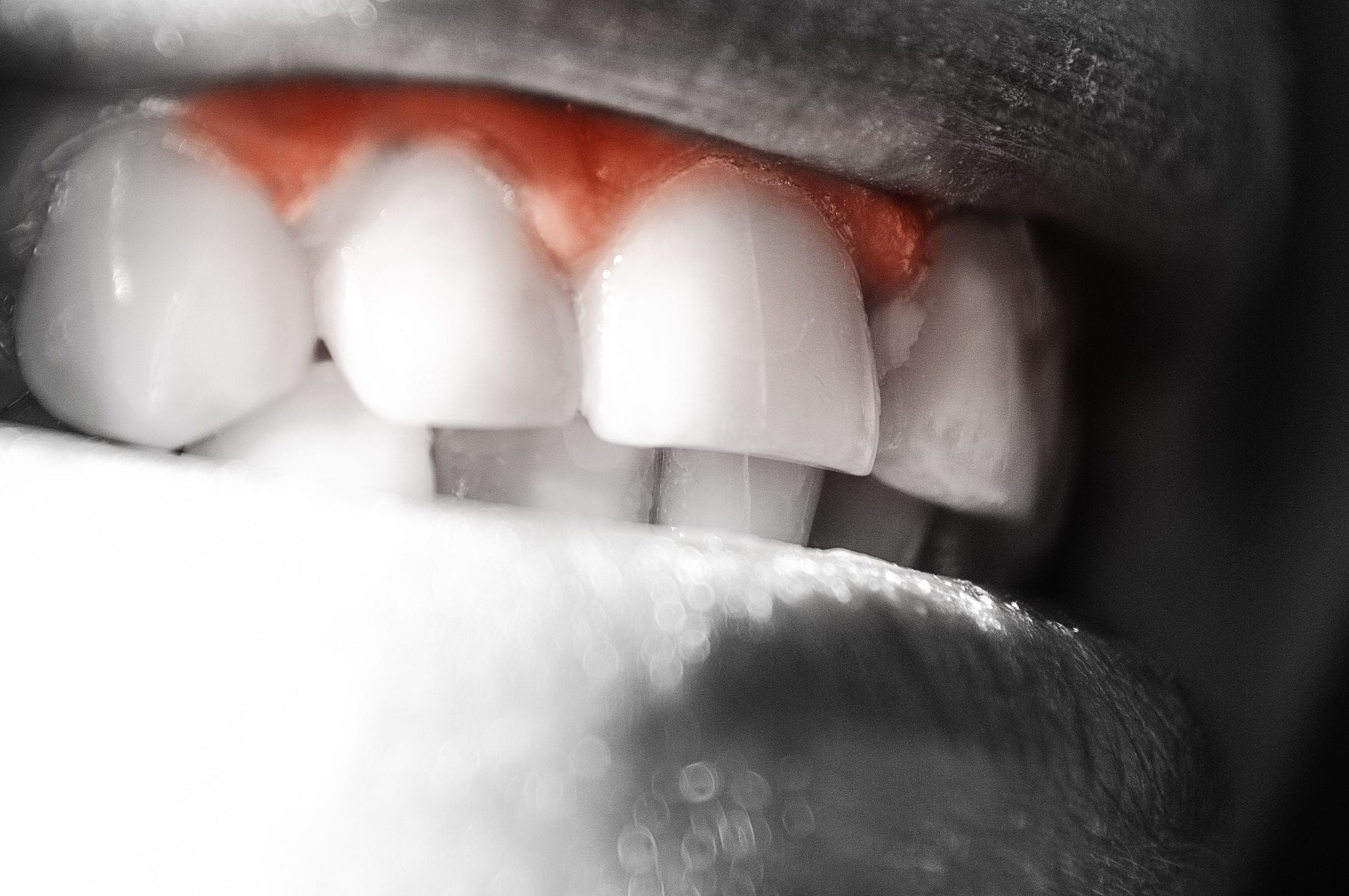 What Does It Mean If Your Gums are Bleeding?