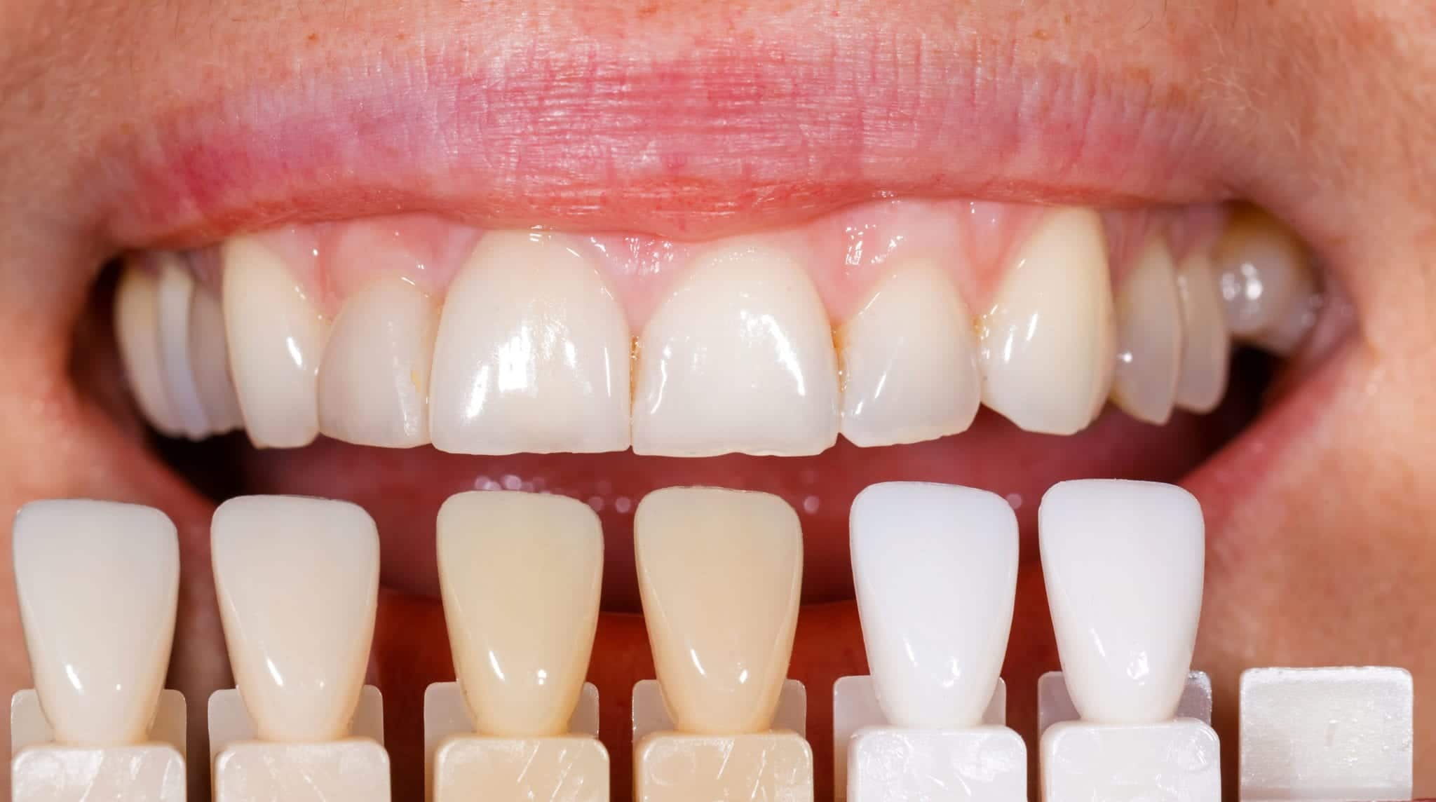 The Vast Difference between Whitening and Tooth Color Restoration