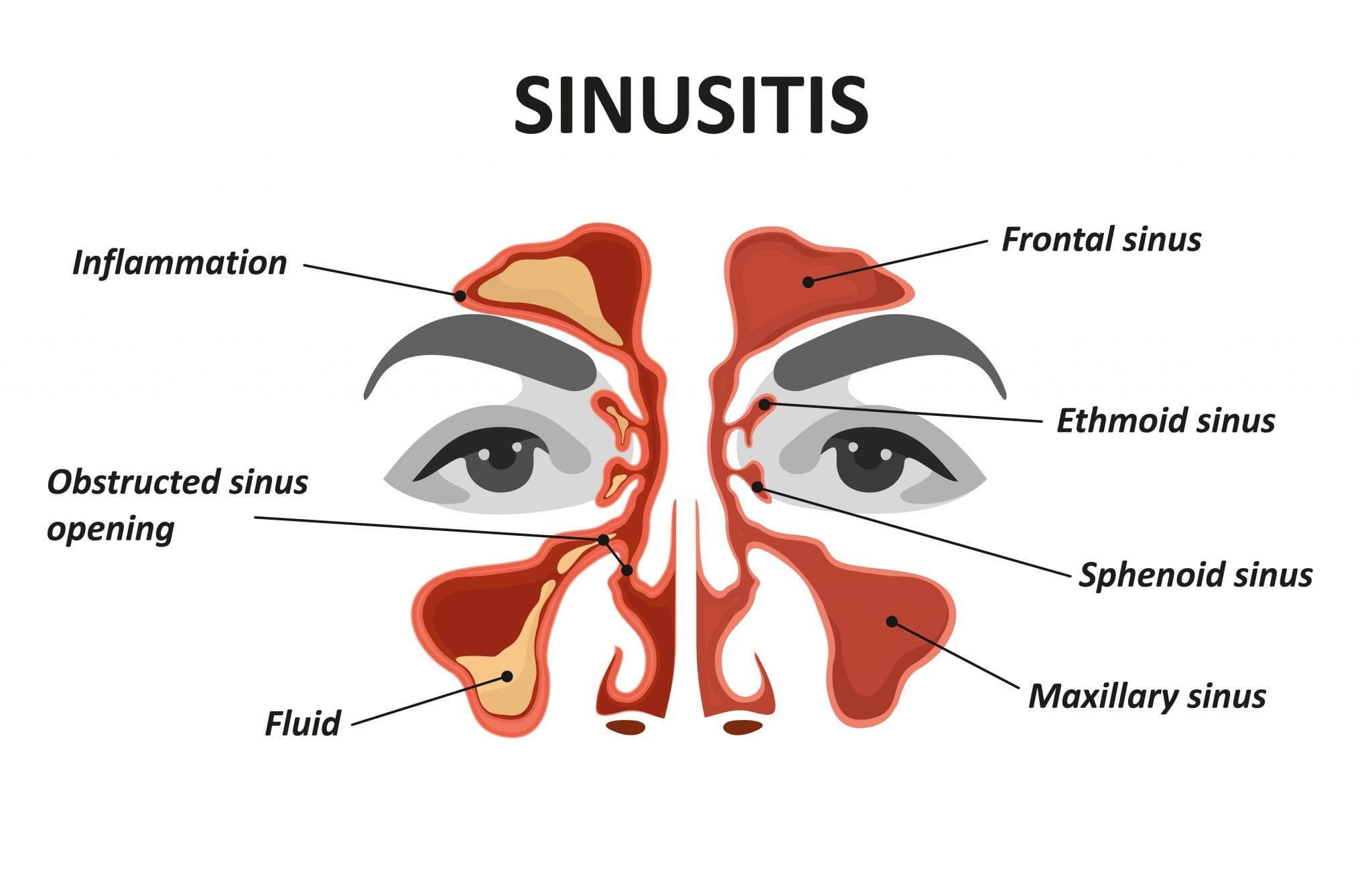 , How Your Oral Health Can Affect Your Sinuses